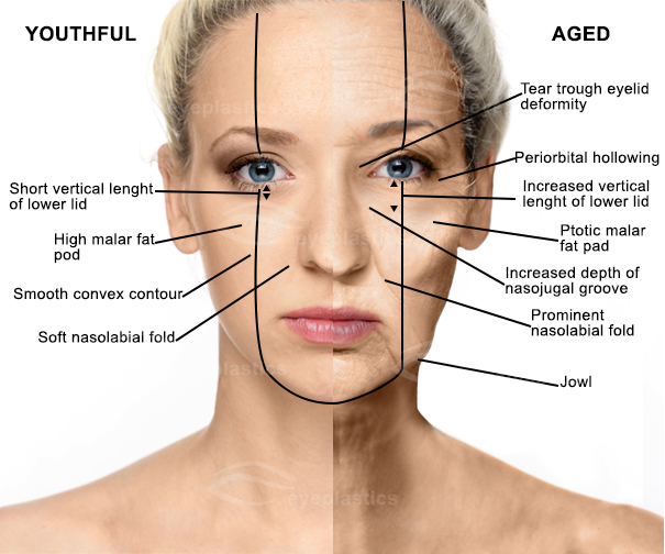 Aging face | Facelift surgery | Face-lift surgery
